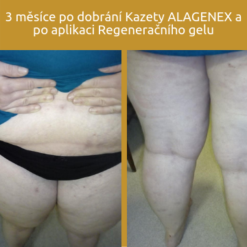 3 měsíce po dobrání Kazety ALAGENEX a po aplikaci Regeneračního gelu