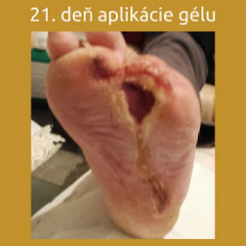 21 dní po aplikácii regeneračného gélu ALAGENEX