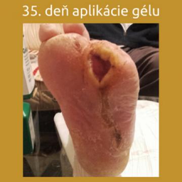 35. deň od aplikácie regeneračného gélu ALAGENEX